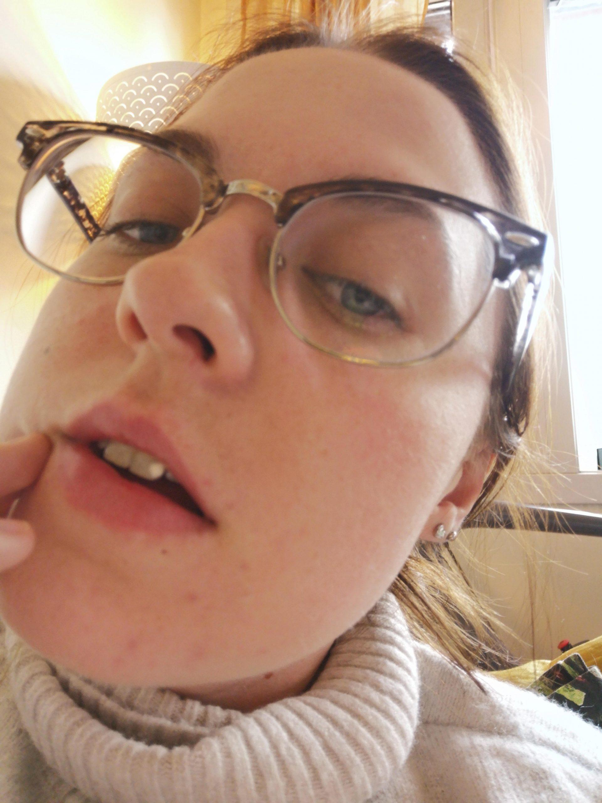 Hege Lianne Williams etter neseskillevegg operasjon. Hadde skjev septum.